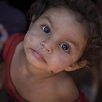 WORLD VOICE: The Children of Syria: Hunger in a War Zone